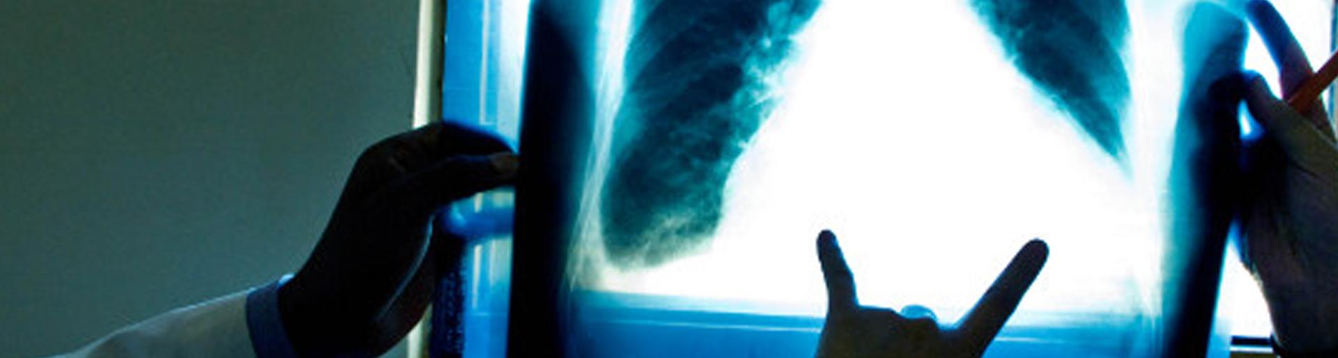Tuberkulozi